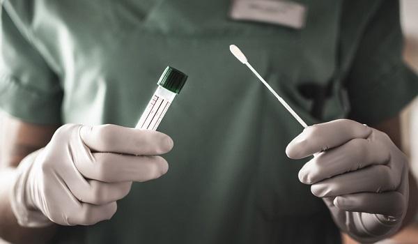 Mais de 6 milhões de testes de Covid-19 estão prestes a perder validade por descaso do governo federal